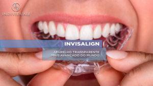 O Invisalign é um aparelho ortodôntico praticamente invisível que vem revolucionando a maneira como as pessoas tratam seus dentes.
