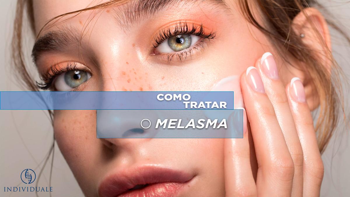 Melasma é o surgimento de manchas escuras na pele, embora possa ocorrer em qualquer área do corpo exposta ao sol, como braços e colo, ocorre geralmente no rosto.
