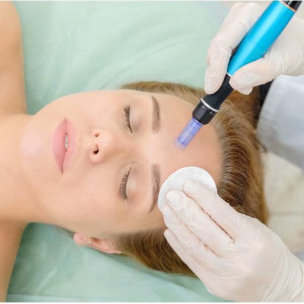 Tratamento Facial - Microagulhamento