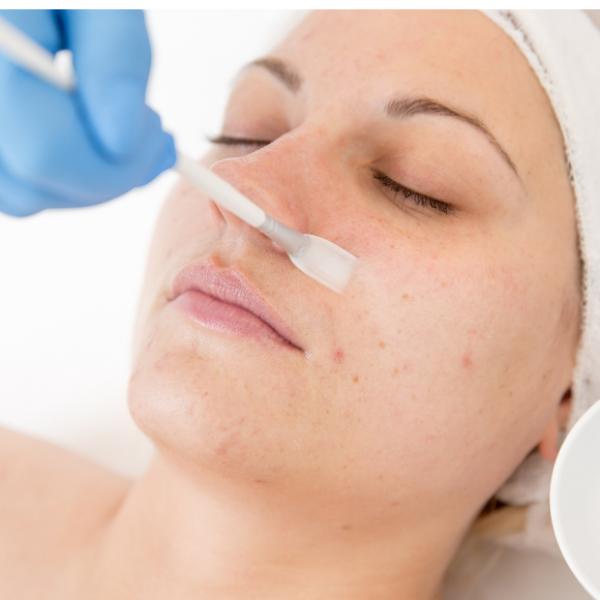 Tratamento Facial - Peeling Químico